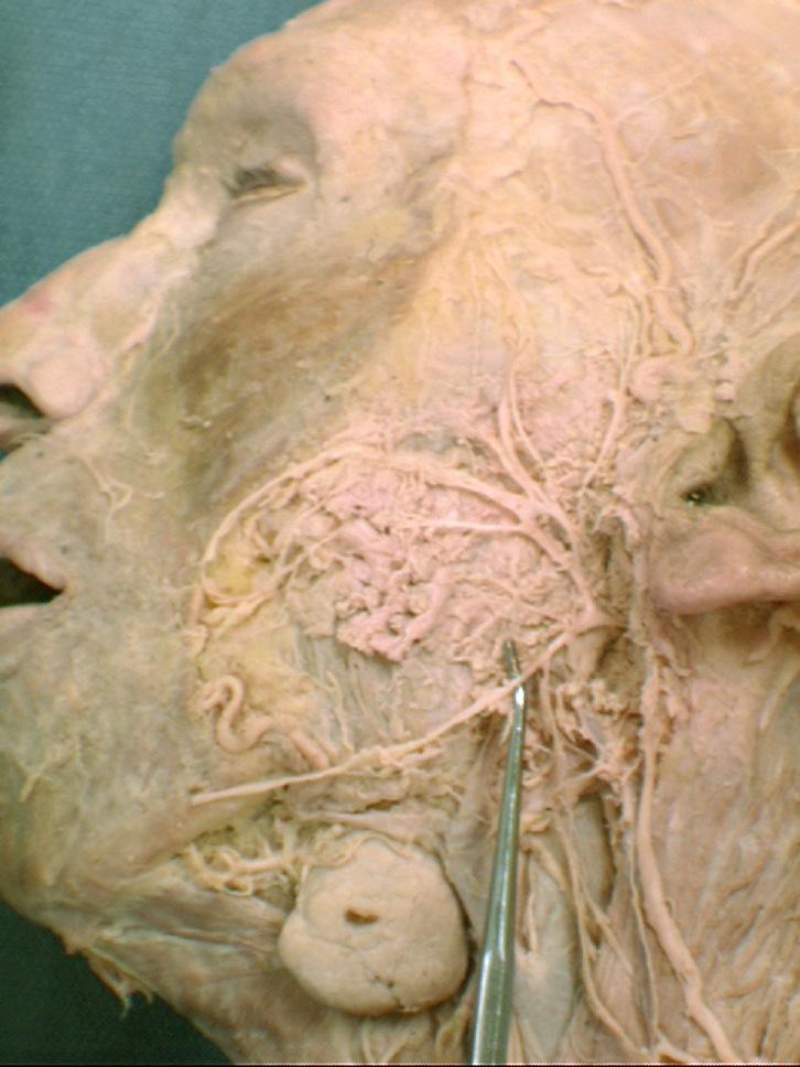 pseudoparalysis marginal mandibular nerve relationship
