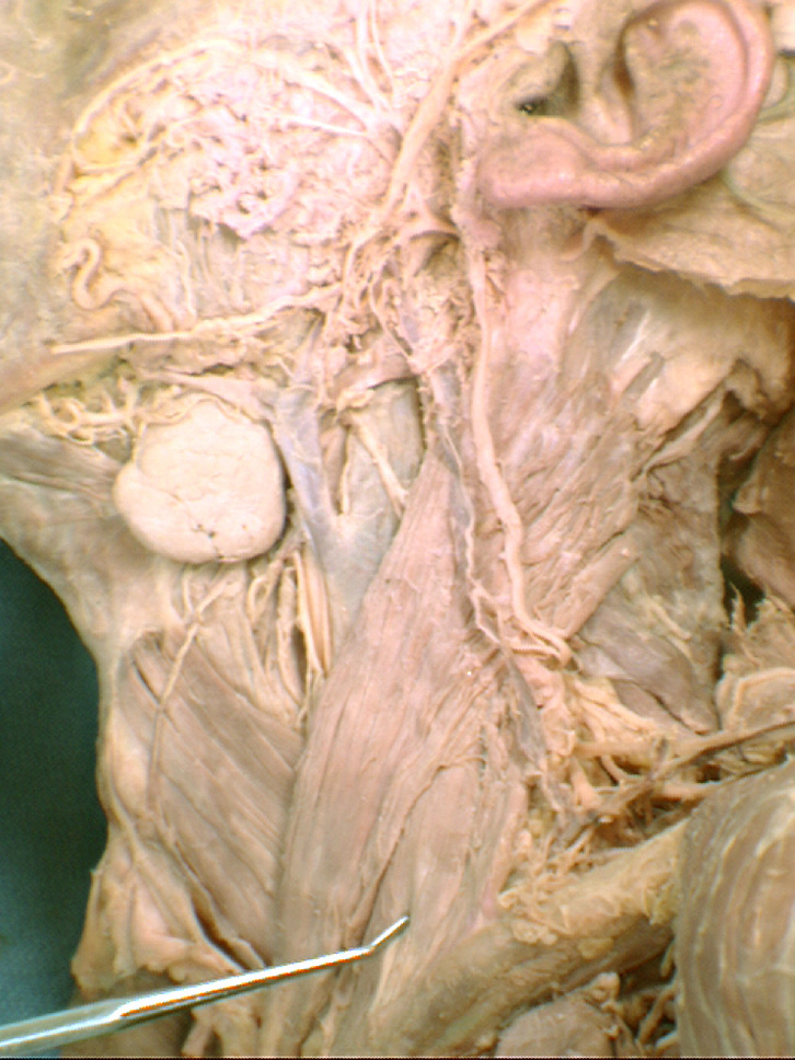 Sternocleidomastoid M Clavicular Head