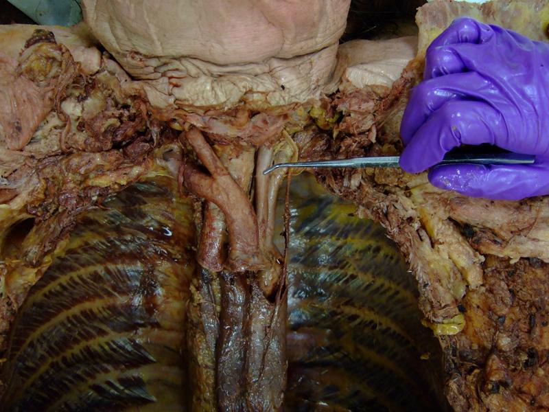 Common carotid artery cadaver